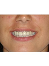 Dental Bridges - Dr.Cem Baysal - Implantology/Radiology Specialist