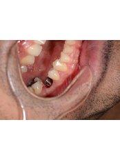 Single Implant - CAPA Cerrahi Estetik Dental Clinic