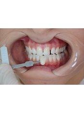 Zoom! Teeth Whitening - CAPA Cerrahi Estetik Dental Clinic