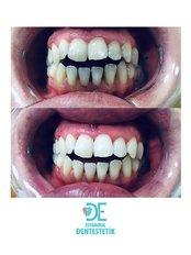 Zahnaufhellung  - Istanbul Dentestetik