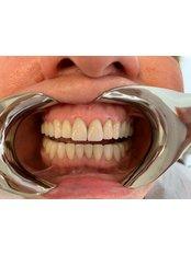 Keramikkrone - Istanbul Dentestetik