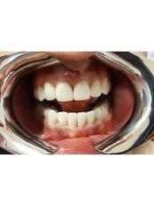 Invisalign™ - Istanbul Dentestetik