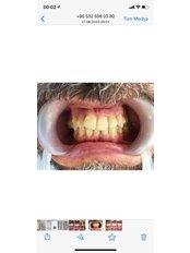 Zirkonkrone - Istanbul Dentestetik