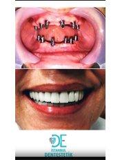 Zahnimplantate - Istanbul Dentestetik