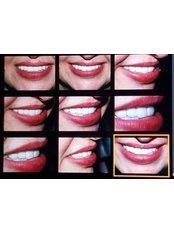 Zirconia Crown - Okutan Dental Clinics