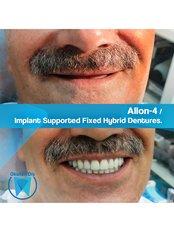 All-on-4 Dental Implants (Zinedent/Straumann Group) (per jaw) - Okutan Dental Clinics