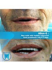 All-on-6 Dental Implants (Nobel Biocare) (per jaw) - Okutan Dental Clinics