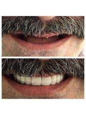 All-on-4 Dental Implants - Dentakademi Oral & Dental Healthcare Centre