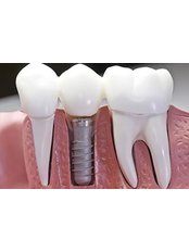 Dental Crowns - Dentakademi Oral & Dental Healthcare Centre
