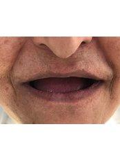 All-on-6 Dental Implants - Dentakademi Oral & Dental Healthcare Centre
