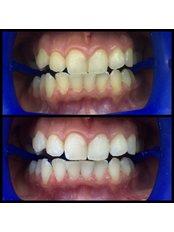 Teeth Whitening - Dentakademi Oral & Dental Healthcare Centre