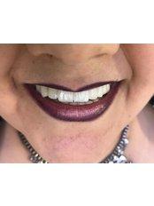 Dental Implants - Dentakademi Oral & Dental Healthcare Centre