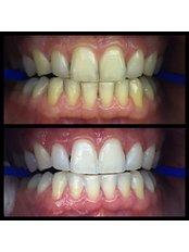 Zoom! Teeth Whitening - Dentakademi Oral & Dental Healthcare Centre