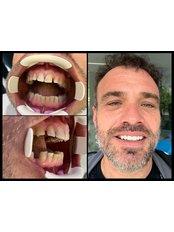 Zirconia Crown - Dentakademi Oral & Dental Healthcare Centre
