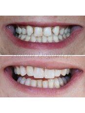 Dental Bonding - Dentakademi Oral & Dental Healthcare Centre