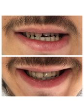 PFM Crown - Dentakademi Oral & Dental Healthcare Centre