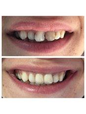 Porcelain Crown - Dentakademi Oral & Dental Healthcare Centre