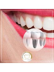 Single Implant - Dentakademi Oral & Dental Healthcare Centre