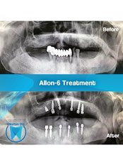 All-on-6 Dental Implants (Nobel Biocare) (per jaw) - Okutan Dental Clinics