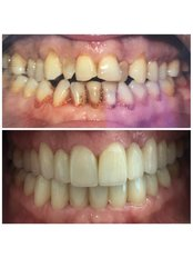 Porcelain Veneers - Okutan Dental Clinics