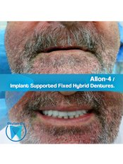 All-on-4 Dental Implants (Nobel Biocare) (per jaw) - Okutan Dental Clinics