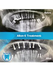 All-on-6 Dental Implants (Zinedent/Straumann Group) (per jaw) - Okutan Dental Clinics