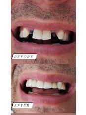 Dentist Consultation - Alpi Dent