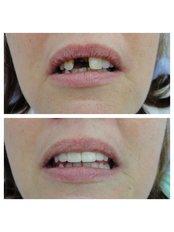 Dental Bridges - Bianco Dental