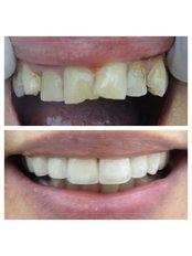 Porcelain Veneers - Bianco Dental