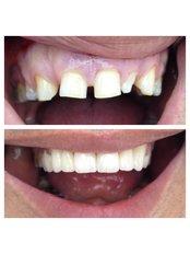 Dental Crowns - Bianco Dental
