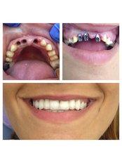 Dental Implants - Bianco Dental
