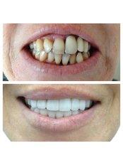 Veneers - Bianco Dental