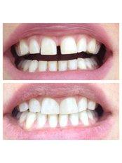 Dental Bonding - Bianco Dental
