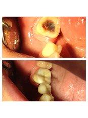 Inlay or Onlay - Bianco Dental