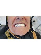 Bego Implant - New Teeth-Turkey