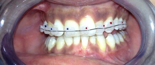 Tooth Amp Implant Dental Clinic In Izmir Turkey