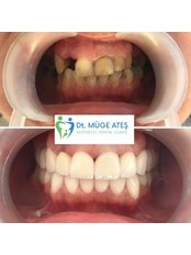 Zirconia Crown - Dt. Muge Ates Aesthetic Dental Clinic