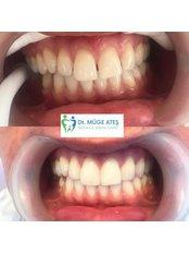 Dental Bonding - Dt. Muge Ates Aesthetic Dental Clinic