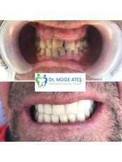 Porcelain Crown - Dt. Muge Ates Aesthetic Dental Clinic