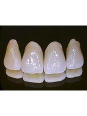 Zirconia Crown - Confident Dental Care