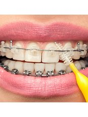 Orthodontic Cleaning Treatment - The Dental Hygiene Suite