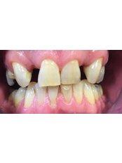 Dental Bridges - Coxhoe Dental Practice
