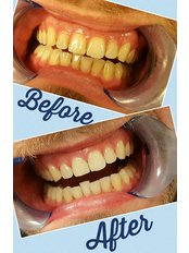 Airflow Stain Removal - Smile restoration - Billericay Dental Care