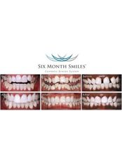 Six Month Smiles™ - The Whitehouse Dental Surgery