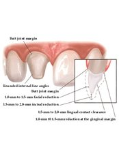 Porcelain Crown - Your Perfect Smile Dental Clinic Aviemore