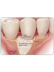 Bone Graft  - Your Perfect Smile Dental Clinic Aviemore