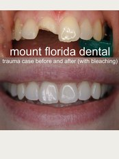 Mount Florida Dental - trauma case
