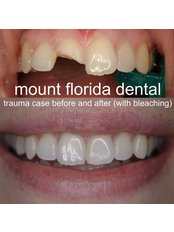 Mount Florida Dental - trauma case