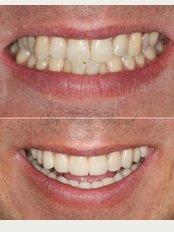 Smile Style Dental Care - 146A Holland Park Avenue, London, W11 4UE,