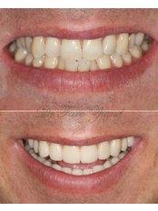 Smile Style Dental Care - 146A Holland Park Avenue, London, W11 4UE,  0